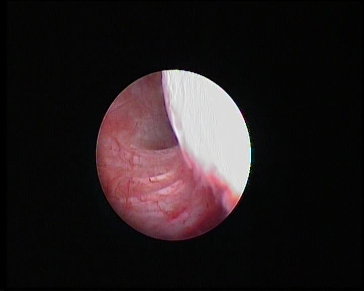 Chirurgie arthroscopique - Congestion du cul de sac postérieur de l'épaule