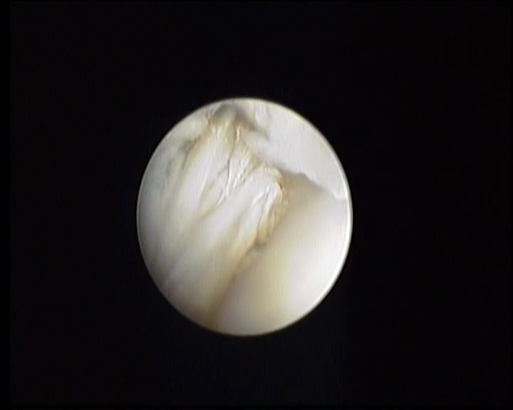 Chirurgie arthroscopique - Déchirure du ligament croisé cranial