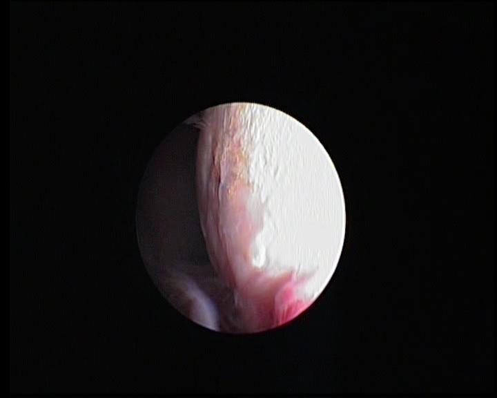 Chirurgie Arthroscopique - Chondromalacie