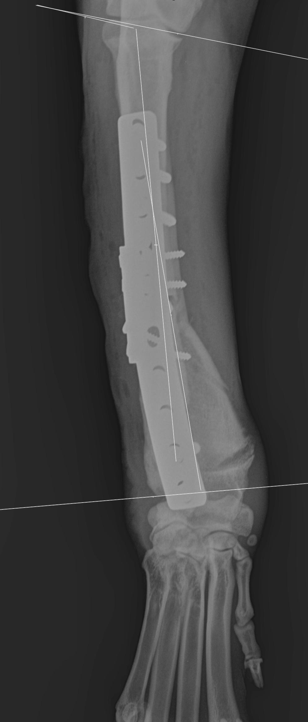 Ostéotomies Correctrices des Déformations Osseuses